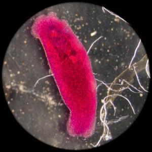 Parasiten unter dem Mikroskop